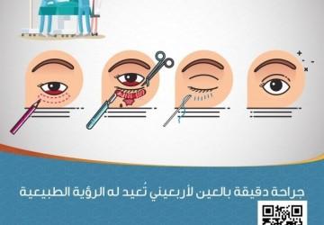 قسم العيون والجراحة بمستشفى الأهلي ينجح في إزالة ندبة شديدة منذ الطفولة