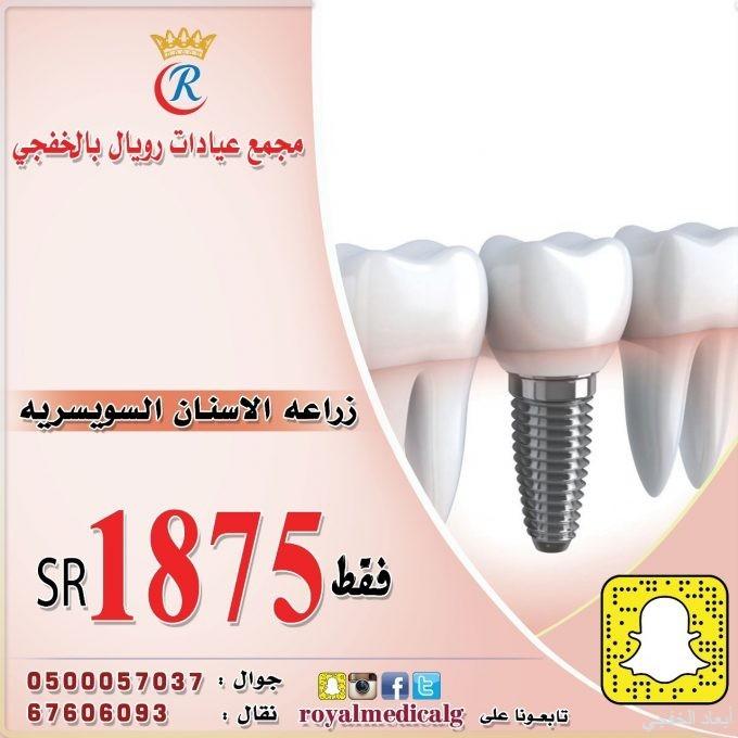 عروض خاصة على عيادات الأسنان والتجميل والحمل في رويال الطبي بالخفجي
